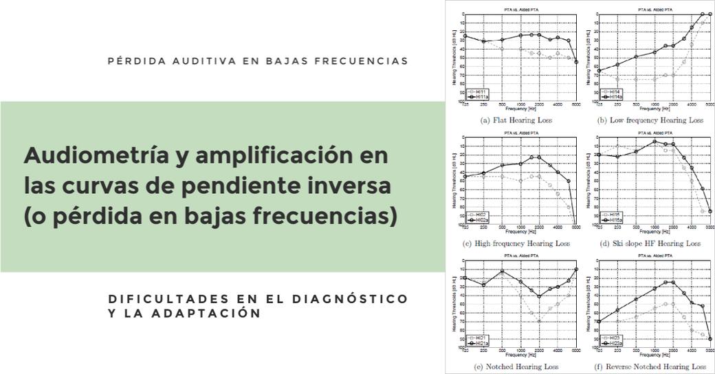 Audiometría y amplificación en las curvas de pendiente inversa (o pérdida en bajas frecuencias)