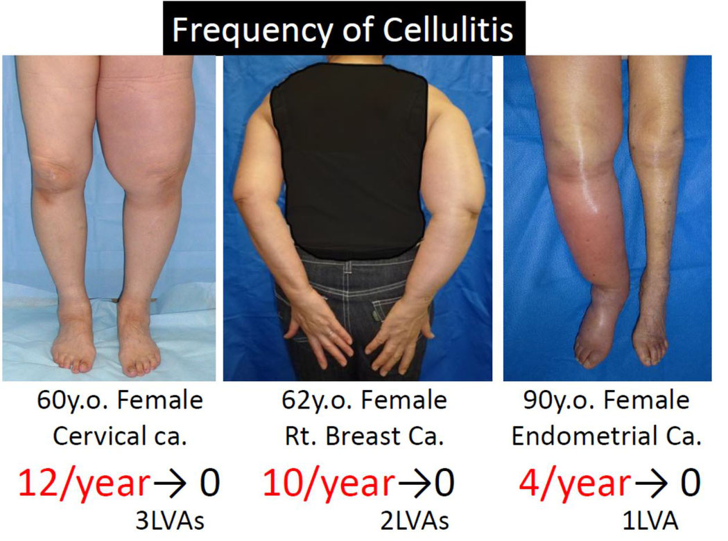 New Treatment and Prevention of Cellulitis, Lymphedema Treatment Japan, LVA Surgery