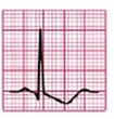 EKG ST-Senkung Deszendierend