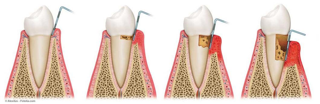 Bei einer Parodontose fängt das Zahnfleisch langsam an sich von den Zähnen abzulösen. Es entstehen sogenannte Zahntaschen: © Alexilus - Fotolia.com (#52153929)
