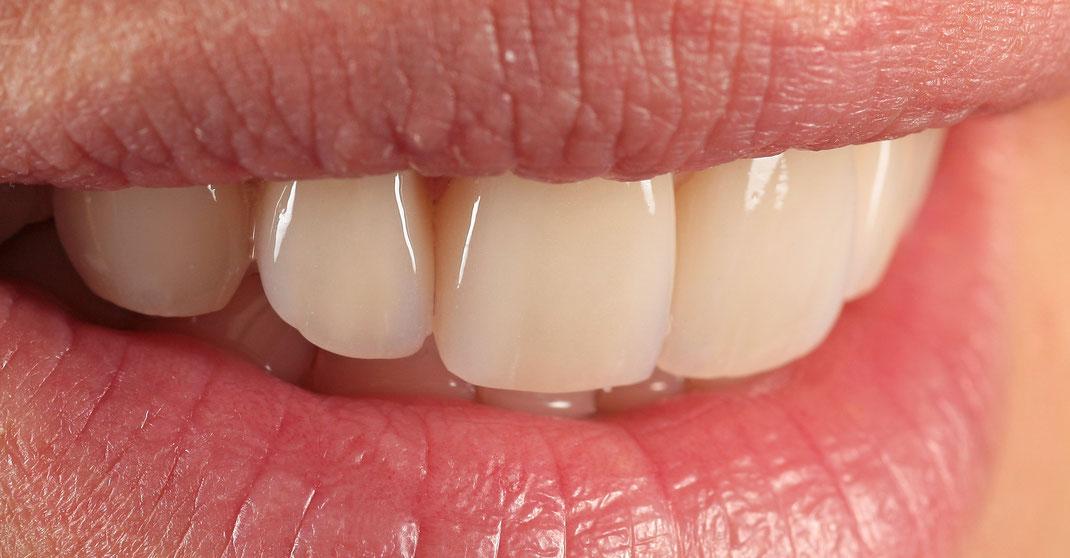 Ästhetischer Zahnersatz, Veneers auf vier Schneidezähnen. www.mb-dental.de