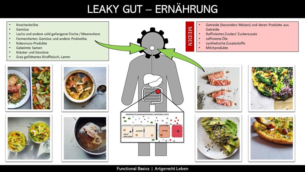 Was kann man bei Leaky Gut essen?