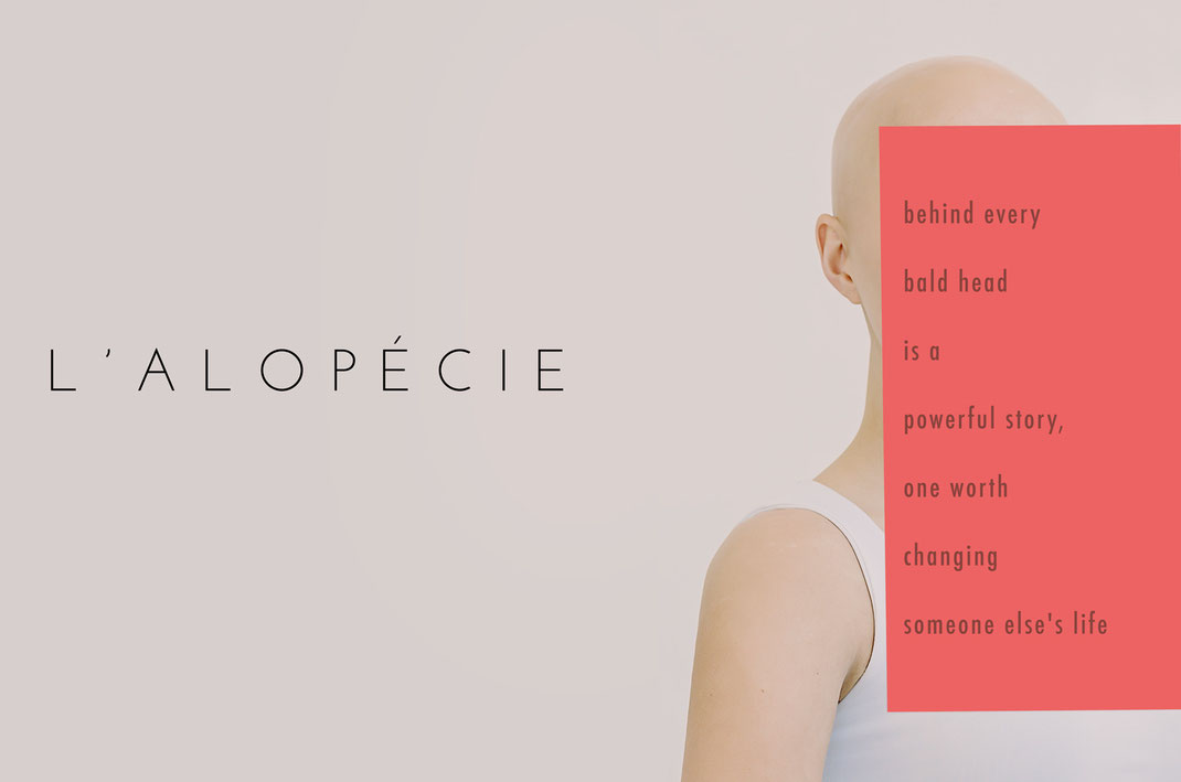 alopecie alopecia