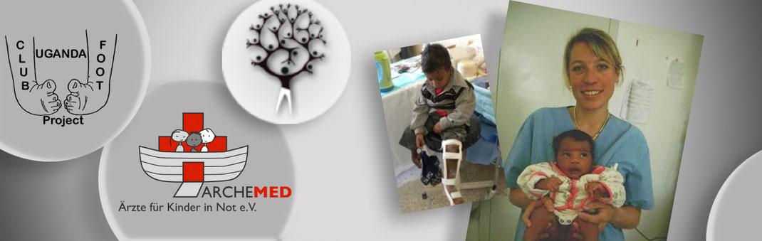 Die Charity-Organisation Archemed engagiert sich weltweit für die Klumpfußbehandlung nach Ponseti