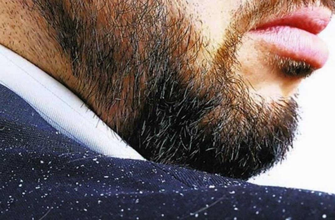 ¿Cómo eliminar la caspa de la barba?