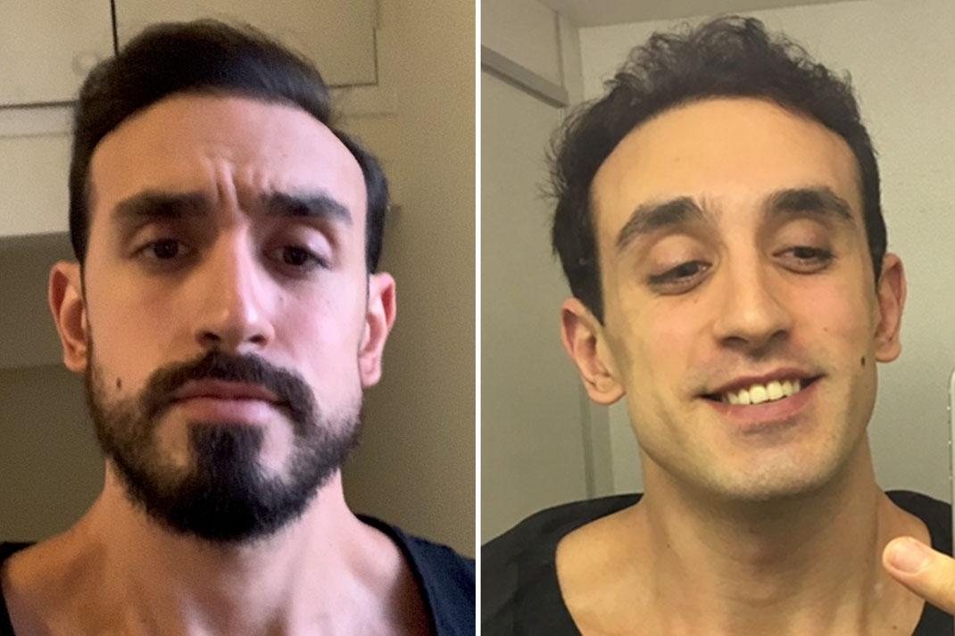 ¿Por que no me crece la barba y tengo huecos? SOLUCION