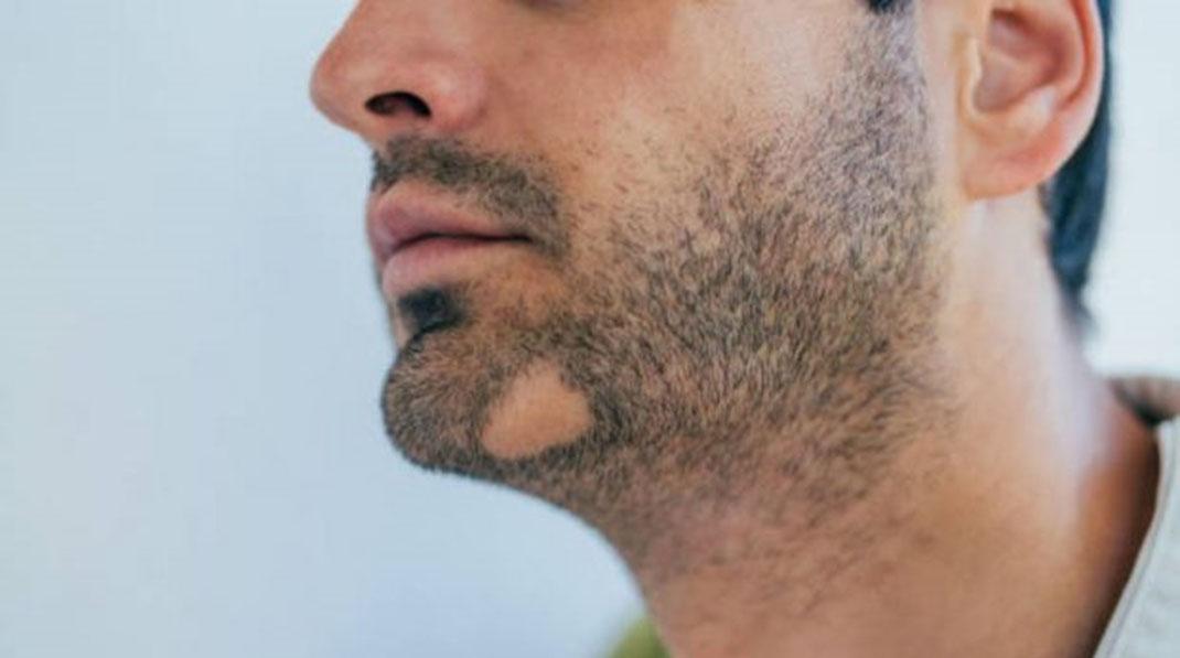 ¿Como evitar que se caiga el Pelo de la Barba?