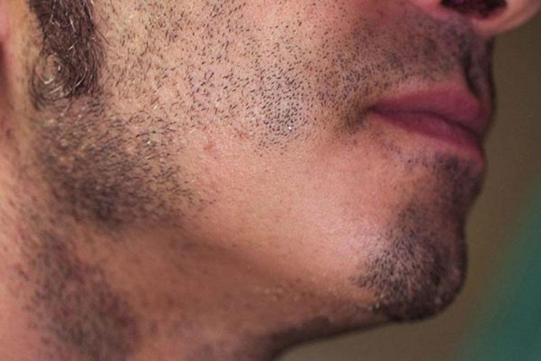 Consejos para tapar barbas irregulares o con huecos