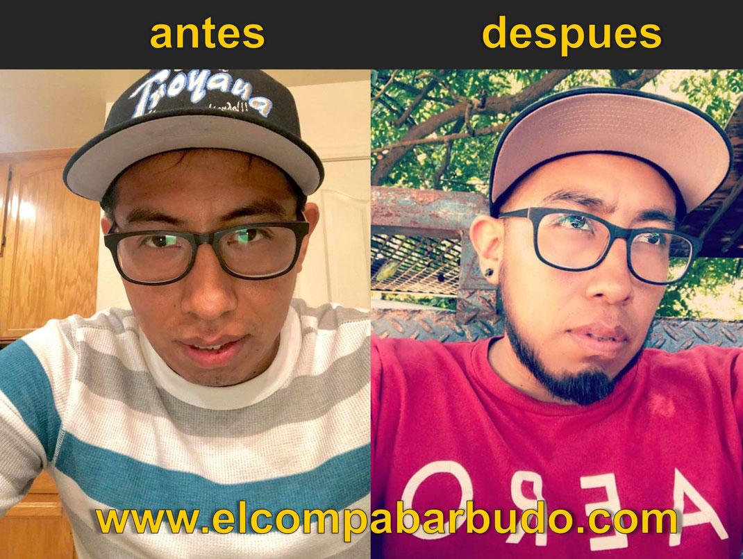 Resultados Minoxidil en Barba y Bigote en Mexico COMPA BARBUDO