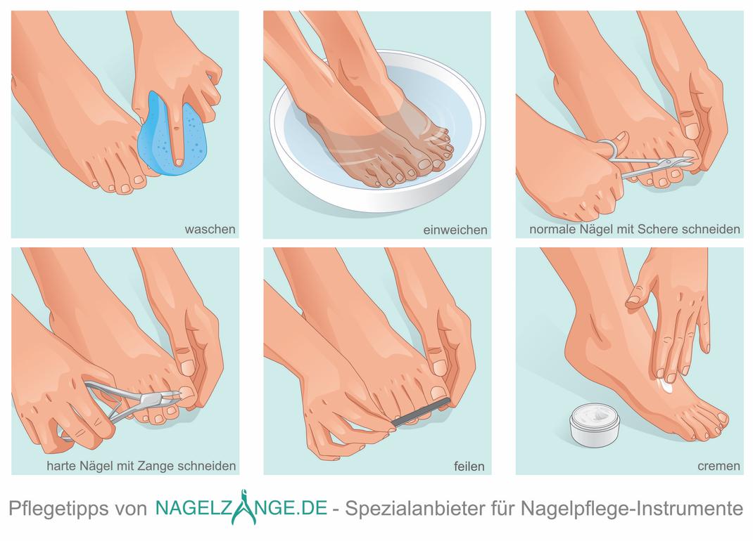 Frage: Wie schneidet man Fußnägel richtig? Hier sieht man Pflegetipps für Ihre Fußnägel