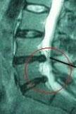 椎間板ヘルニア