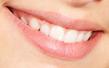 Lächelndes Gebiss wegen Bedeutung der Zahngesundheit für die Huntington-Krankheit / Chorea Huntington