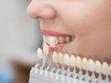八戸市ホワイトニング くぼた歯科 ポリリン