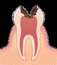 歯の神経まで進んだ虫歯のイラスト図