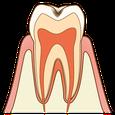 たかす歯科クリニック虫歯