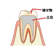 たかす歯科クリニック根管治療