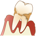 たかす歯科クリニック歯周病