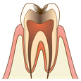 五反田 歯科 たかす歯科クリニック虫歯