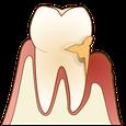 五反田 歯科 たかす歯科クリニック歯周病