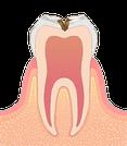 歯の神経に近い虫歯のイラスト図
