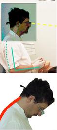 Lupenbrille, Zahnarzt, Neigungswinkel, Ergonomie
