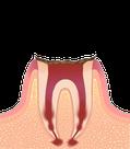 末期虫歯のイラスト図