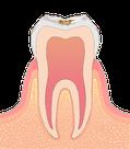 削る必要のないごく初期の虫歯のイラスト図