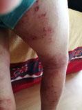 photo eczema de l'enfant