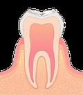 ごく初期の虫歯イラスト図