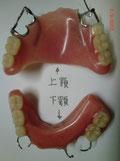 写真 舌接触補助床(上顎用、下顎用)
