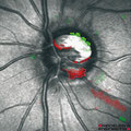 HRT Glaukom