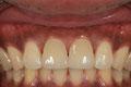 Definitive Implantat-Krone von einem rechten, grossen Schneidezahn