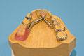 Teilprothese (Modellguss vorbereitet für Einprobe)