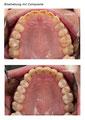 Starke Abnützung der Zähne
