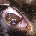 Melanom der Iris