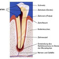 Große Karies mit abgestorbenem Zahnnerv