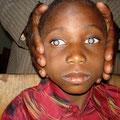 Kind mit angeborenem grauen Star