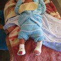 Nouveau-né avec des pieds bots