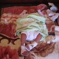 Nouveau-né (1 jour!) avec des pieds bots