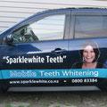 Sparklewhite Teeth Car