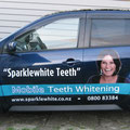 Sparklewhite Teeth Car