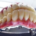 Bridge transvissé en composite (6 implants), armature usinée