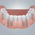 Zahnloser Unterkiefer festsitzend versorgt