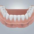 Zahnloser Unterkiefer versorgt mit implantatgetragener Prothese