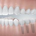 Freiendlücke mit implantatgetragener Einzelzahnversorgung