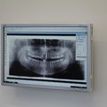 Digitale Röntgenanlage