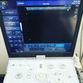 超音波検査 エコー検査 画像
