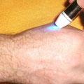 Farblichtpunktur