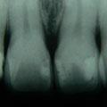 ...aber im Röntgenbild: es sind die Zähne11 und 21!