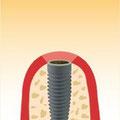 Einheilphase des Implantats: beachten Sie bitte die geringe Wundfläche.